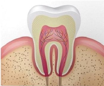 Przebudowa górnego łuku zębowego licówkami całoceramicznymi Radom