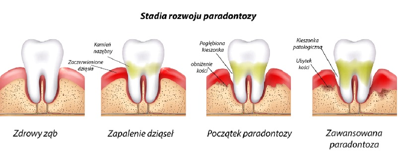 Stadia rozwoju paradontozy
